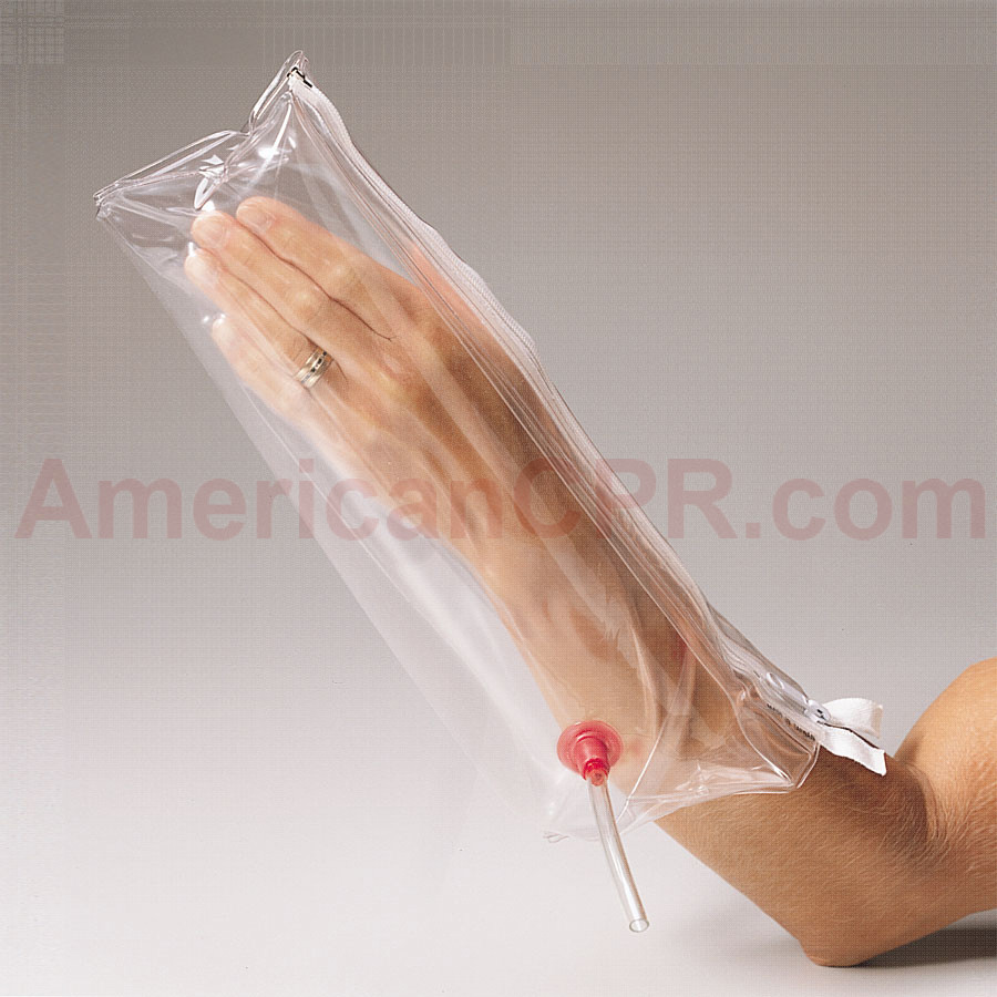 Splint, Inflatable Air - Hand & Wrist - Mayflower Splint Co.