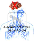 Graphic describing that the brain will begin to die whithin four to six minutes of oxygen depravation